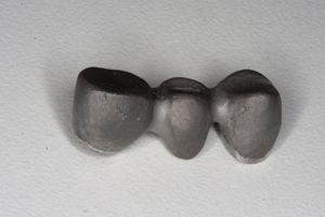 каркас металлокерамики